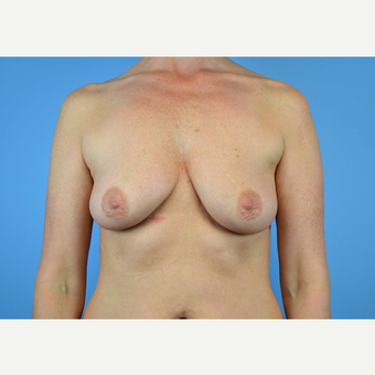45-54 year old woman treated with Breast Implants before 3439987