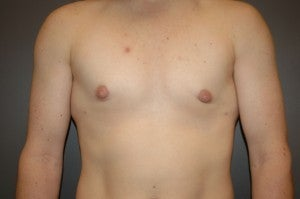Bilateral keyhole approach. Incision limited to lower half of areola. Three month photo. 1130793