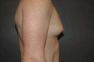 Bilateral keyhole approach. Incision limited to lower half of areola. Three month photo. before 1130793