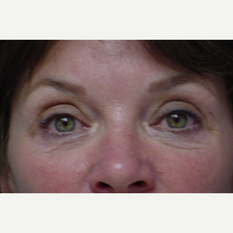 45-54 year old woman treated with Eye Bags Treatment before 3618307