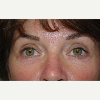 45-54 year old woman treated with Eye Bags Treatment after 3618307