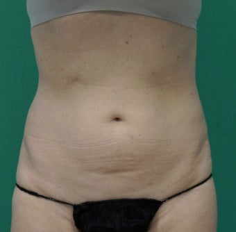 55-64 year old woman treated with SculpSure after 2634533