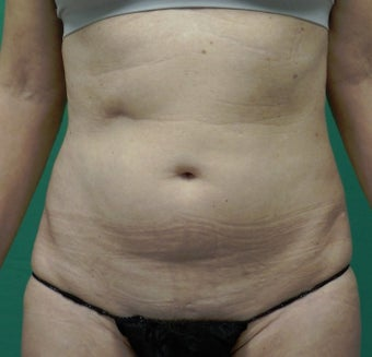 55-64 year old woman treated with SculpSure before 2634533