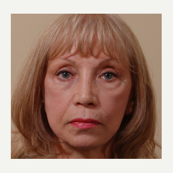 65-74 year old woman treated with Cheek Augmentation before 3749032