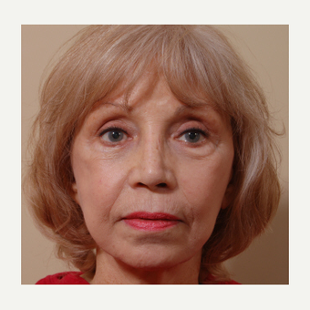 65-74 year old woman treated with Cheek Augmentation after 3749032