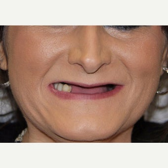 45-54 year old woman treated with All-on-4 Dental Implants before 1762326