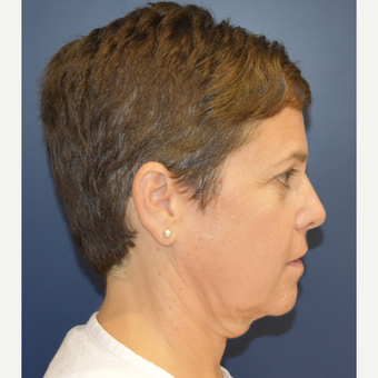 55-64 year old woman treated with Neck Lift before 3461058