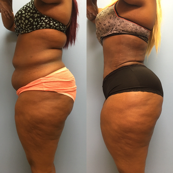 30 year old woman treated with Tummy Tuck and Lipo 360 after 3174751