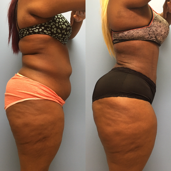 30 year old woman treated with Tummy Tuck and Lipo 360 before 3174751