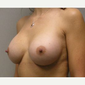 Breast Augmentation after 3681034