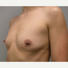 Breast Augmentation before 3681034