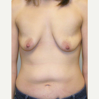 25-34 year old woman treated with Mommy Makeover before 3434731