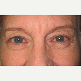 Eyelid Surgery (Blepharoplasty) before 3831517
