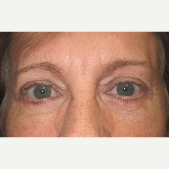 Eyelid Surgery (Blepharoplasty) after 3831517