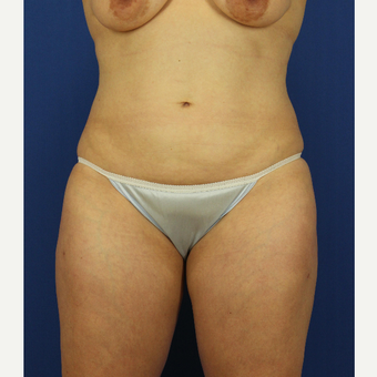 35-44 year old woman treated with Liposuction after 3737869