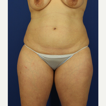 35-44 year old woman treated with Liposuction before 3737869