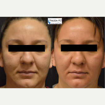 35-44 year old woman treated with Halo Laser