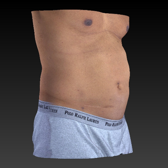 45-54 year old man treated with Smart Lipo after 3814745