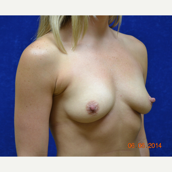 35-44 year old woman treated with Breast Augmentation before 3724947