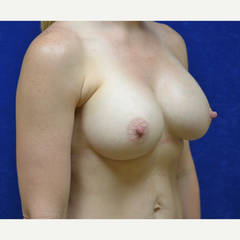 35-44 year old woman treated with Breast Augmentation after 3724947