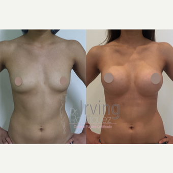 18-24 year old woman treated with Breast Augmentation before 3815491