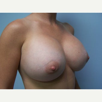25-34 year old woman treated with Breast Implant Exchange 1578336