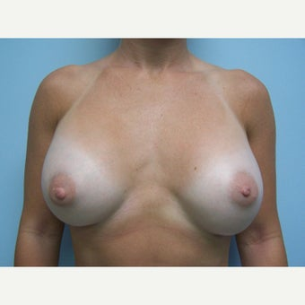 25-34 year old woman treated with Breast Implant Exchange before 1578336