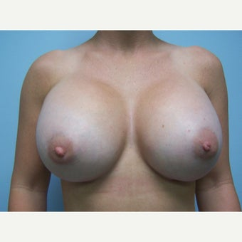 25-34 year old woman treated with Breast Implant Exchange after 1578336