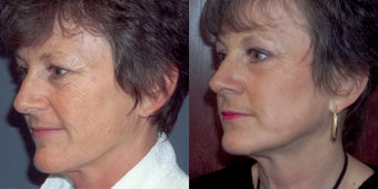 CO2 laser skin resurfacing before 78398