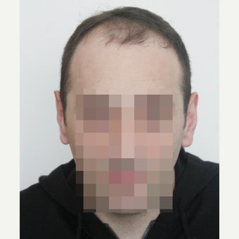 35-44 year old man treated with FUE Hair Transplant before 3145797