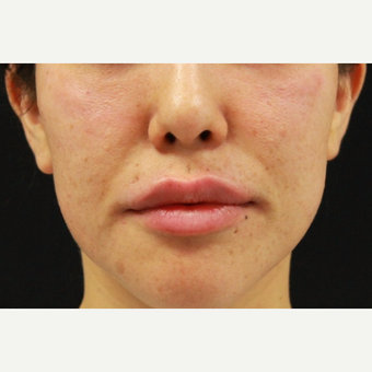 27 year old female treated with Juvederm for lip augmentation after 3104209