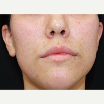 27 year old female treated with Juvederm for lip augmentation before 3104209