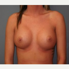 18-24 year old woman treated with Breast Implants after 3303934