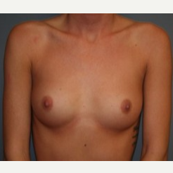 18-24 year old woman treated with Breast Implants before 3303934