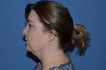44 y/o female who underwent SmartLipo Triplex for her neck 1255225