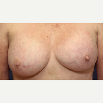 71 year old woman with a Breast Implant Revision before 3076197