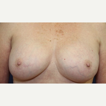 71 year old woman with a Breast Implant Revision after 3076197