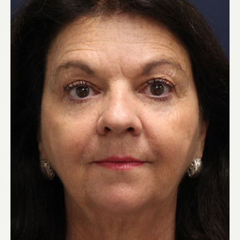 55-64 year old woman treated with Smart Lipo Precision TX to lift and tighten the face after 3243309