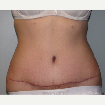 18-24 year old woman treated with Tummy Tuck after 3130506