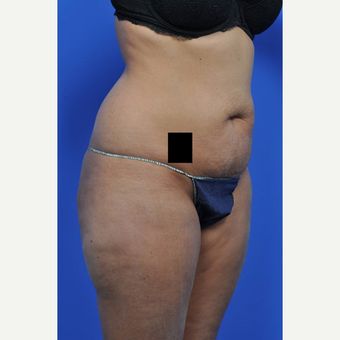 25-34 year old woman treated with Tummy Tuck before 3449713