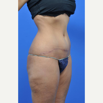 25-34 year old woman treated with Tummy Tuck after 3449713