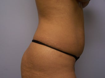 Liposuction 911466