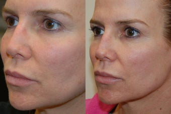 Permanent Lip Augmentation with Silikon-1000 before 1327194