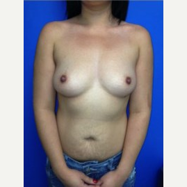 Breast Augmentation before 3744214