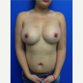 Breast Augmentation after 3744214
