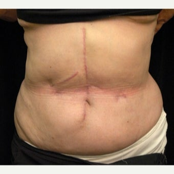 61 year old woman treated with Scar Revision after 1697997