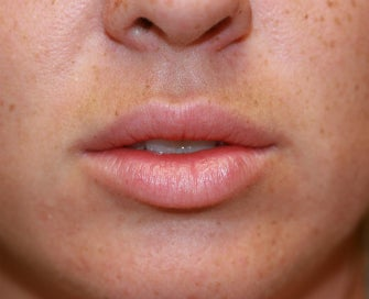 Silicone Lip Implants-Permanent Lip Augmentation before 1174487