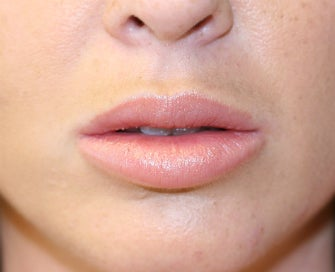 Silicone Lip Implants-Permanent Lip Augmentation after 1174487