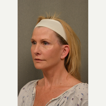 45-54 year old woman treated with Facelift after 3696363
