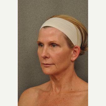 45-54 year old woman treated with Facelift before 3696363